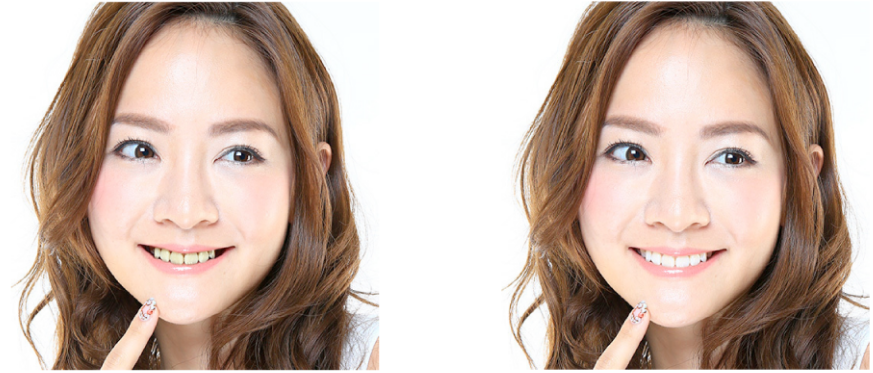 歯の白さによる印象の違い
