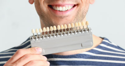 男性もホワイトニングで印象UP!白い歯でモテる男に!