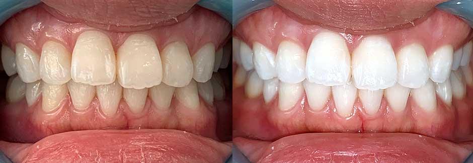 の 値段 歯 ホワイトニング